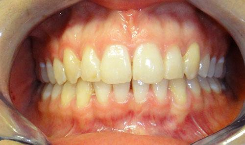 Invisalign - Garden City Dental